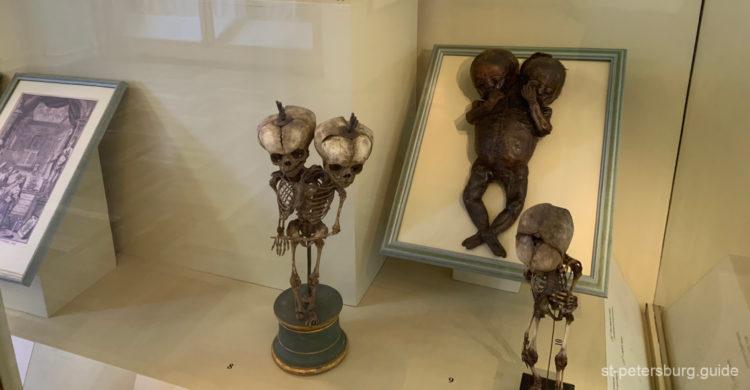 Unusual exhibits placed in Kunstkamera, Anthropology museum in St Petersburg